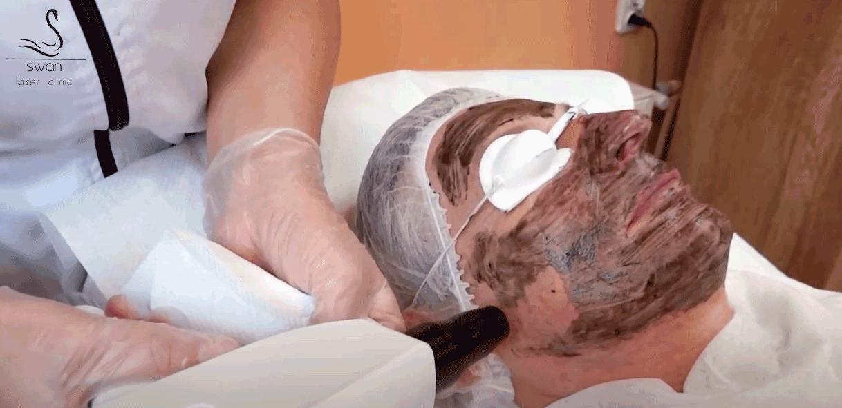 Laserowy Peeling Węglowy